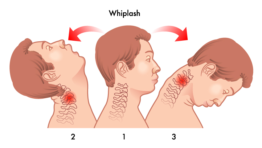 Did You Know Whiplash Can Occur at Low Speeds?